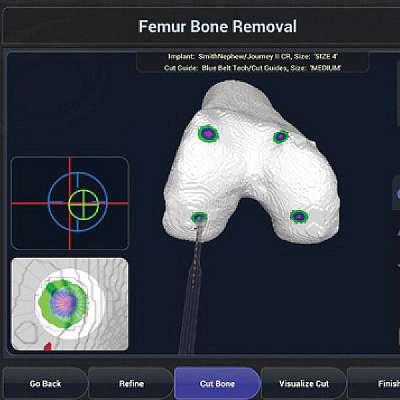 Robotic Total Knee Arthroplasty