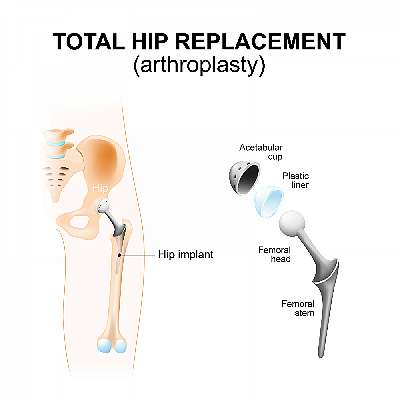 Let's Talk About Hip Replacement