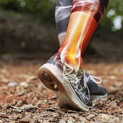 Ankle Arthroplasty